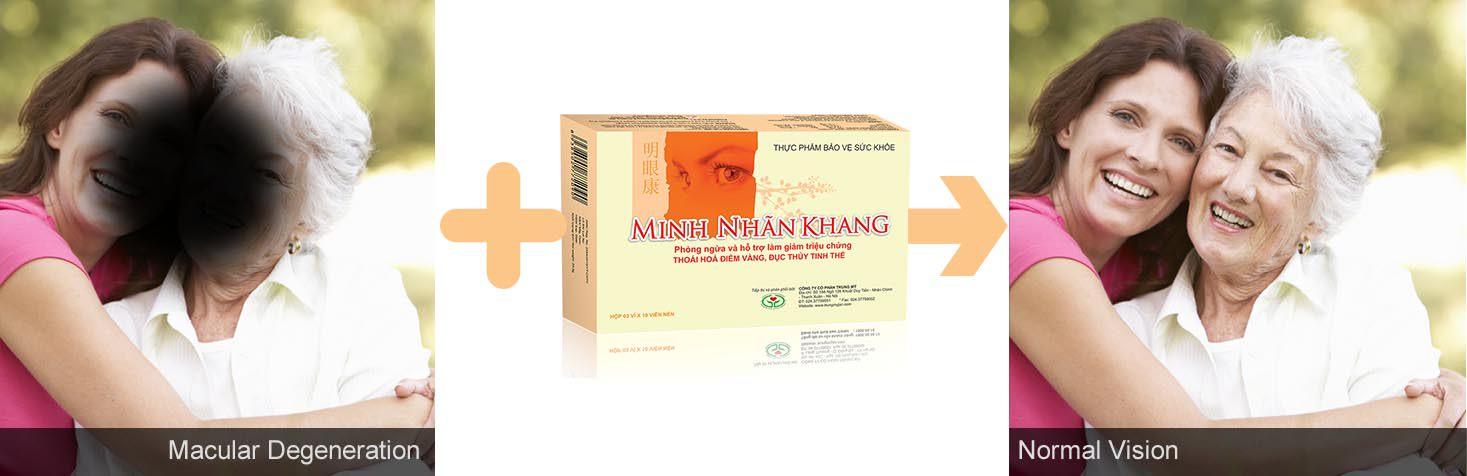 Thoái hóa điểm vàng có nên uống Minh Nhãn Khang không?